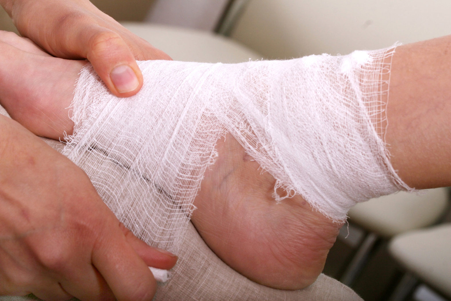 Treatment Of A Non Healing Diabetic Foot Ulcer